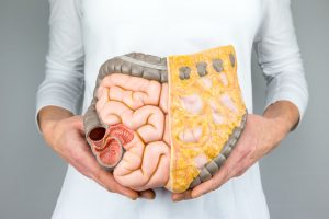 50250493 - woman holding model of human intestines in front of body on white background