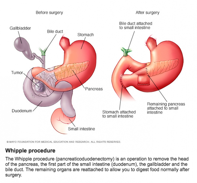 Whipple procedure