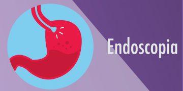 Endoscopia Digestiva